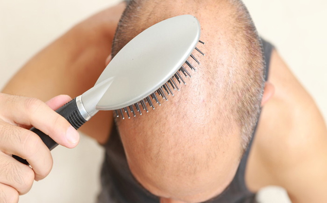News bald men tattoo pictures to pin on pinterest for Tattoo bald spot