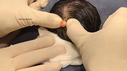 Dr Pimple Popper squeezes puss-filled cyst the size of a MARBLE from patient's head