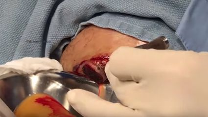 Dr Pimple Popper drains HUGE cyst in gruesome footage