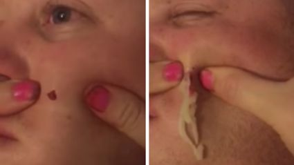 Loving wife pops husband's 4 year old pus-filled zit
