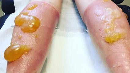 Julie Nisbet lying face-down as the gigantic orange blobs protrude from her calves. Photo / Julie Nisbet Twitter