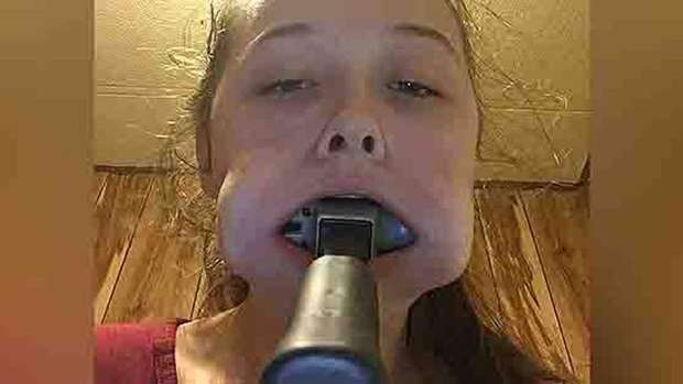 Kaley posted the picture on Twitter with the caption: 'how do u tell ur mum that u got a hammer stuck in ur mouth'. Photo / Twitter
