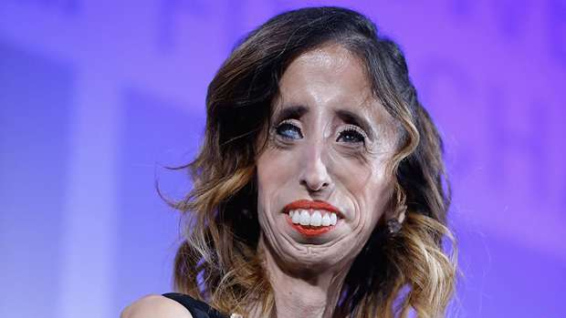 'World's Ugliest Woman' says label was a 'blessing'