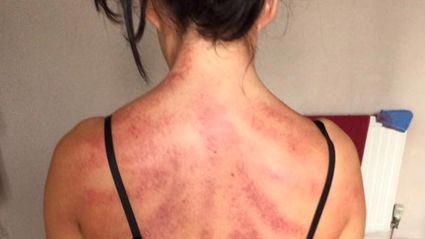 This hairdresser's disturbing photos reveal the heavy toll her job takes on her body