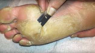 This foot callus removal is as equally disgusting and satisfying as pimple pops!